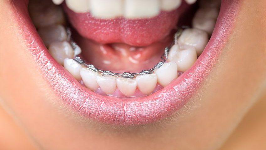 Ortodonta - aparat ortodontyczny Toruń cena - Ortodoncja